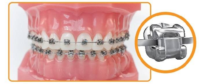 brackets autoligables Damon Q